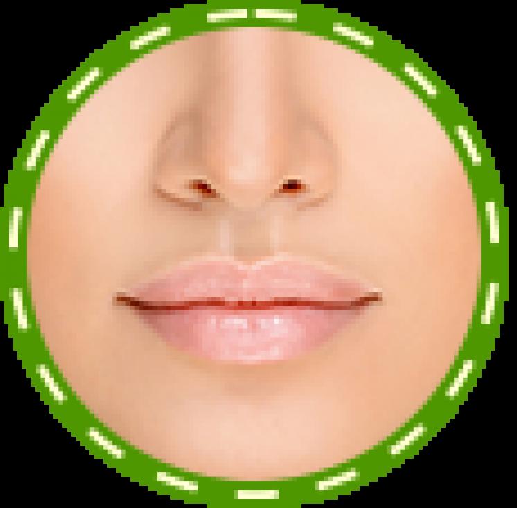 Lūpų putlumo ir formos korekcija, atkūrimas